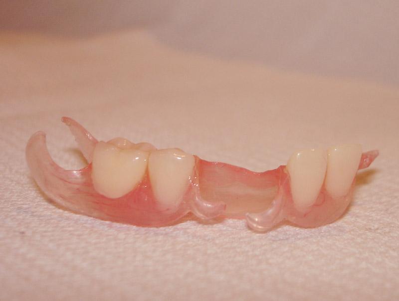 Нейлоновый протез на несколько зубов