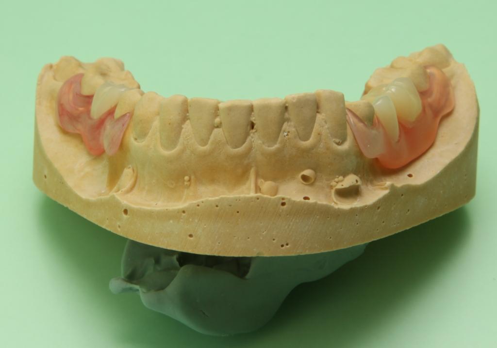 Нейлоновый зубной протез на несколько зубов