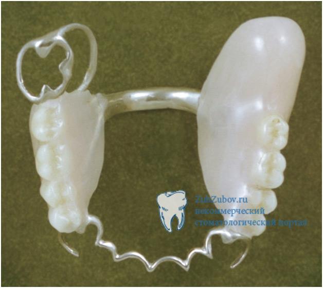 Бюгельный протез на зубы