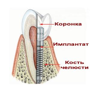 имплант