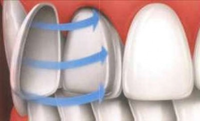 реставрация передних зубов