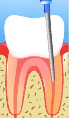 Лечение каналов зуба