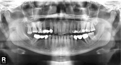 Рентген всех зубов