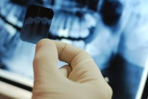 рентген диагностики при удалении зубов мудрости
