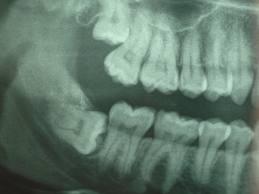 зубы мудрости боль