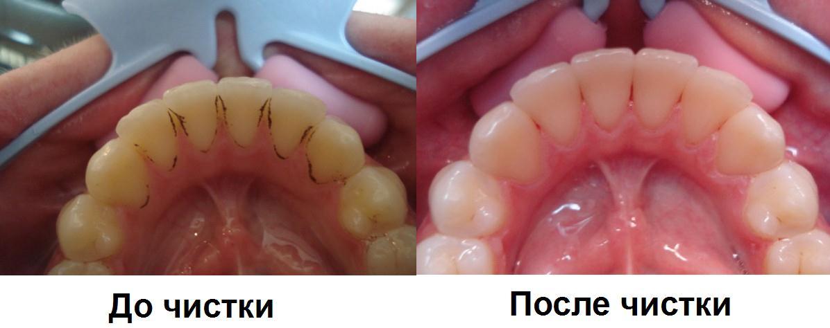 профессиональная чистка зубов отзывы