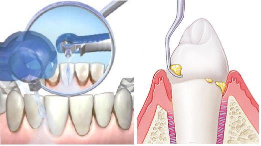 кровоточат десна при чистке зубов