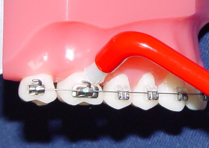 профессиональная чистка зубов ультразвуком отзывы