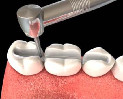 шинирование зубов отзывы
