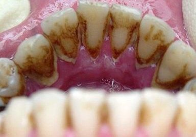 как выглядит зубной камень