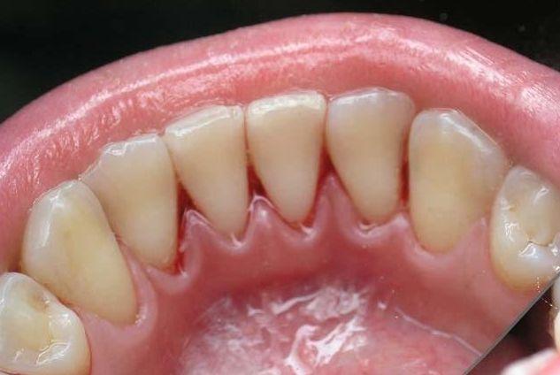 зубной камень удаление стоимость