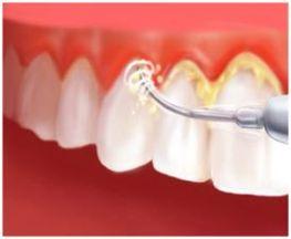 почему образуется зубной камень