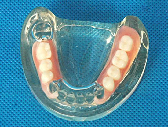 Недостатки нейлоновых зубных протезов