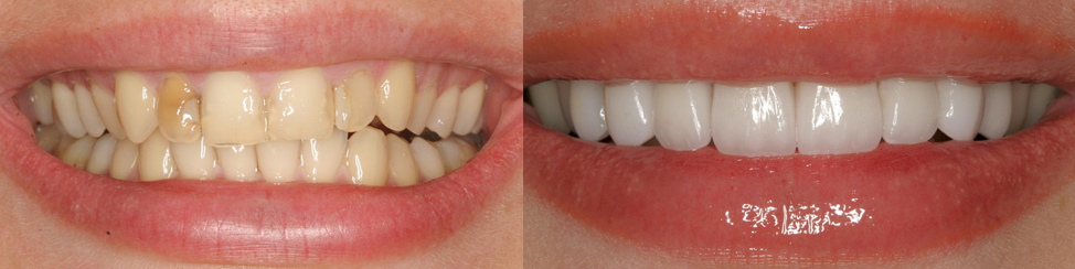 виниры фото до и после