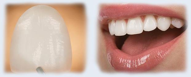 виниры на фронтальные зубы