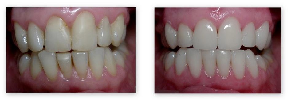 Керамические виниры фото до и после их установки