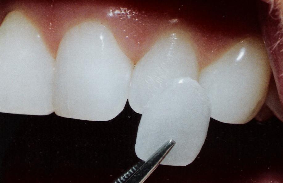 виниры на зубы цена в краснодаре