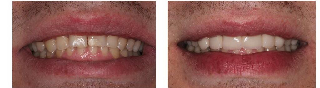 композиты для виниров зубов