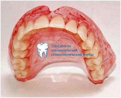 Зубные акриловые протезы