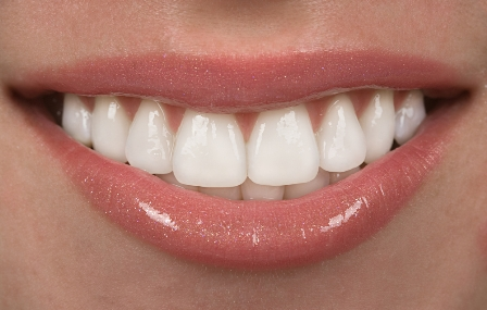 виниры на зубы владивосток