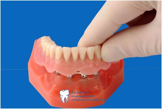 Имплантационное протезирование