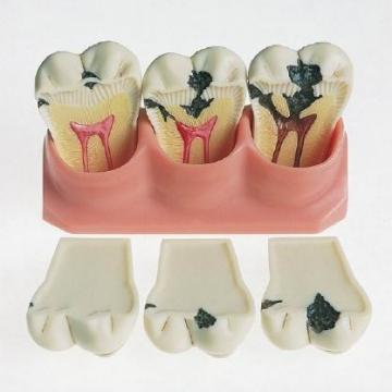 Кариес зубов: причины и лечение - Oralb-blendamed