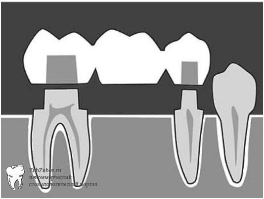 Схема зубного мостовидного протеза