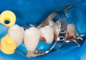 Не лечил зубы 20 лет