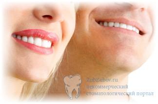 как установить виниры perfect smile