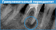 хронический гранулематозный периодонтит
