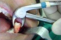 удаление зуба мудрости осложнения