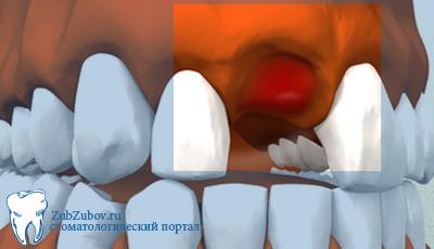 удаление зуба мудрости последствия
