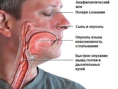 Анафилактический шок после удаления зуба