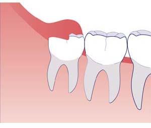 зуб мудрости болит десна