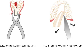 процесс удаления корня зуба