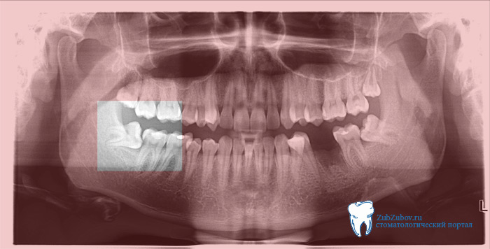 Dental implant procdure - single tooth - implant in jaw