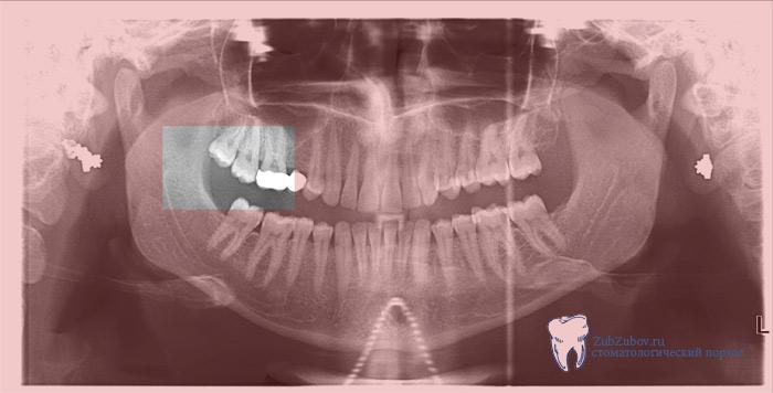 воспаление десны вокруг зуба мудрости