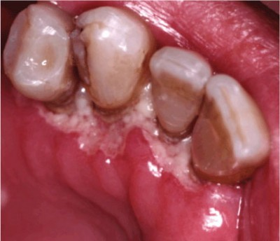 язвенный гингивит - лечение