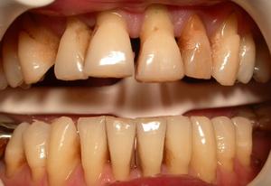 дёсны отходят от зубов лечение