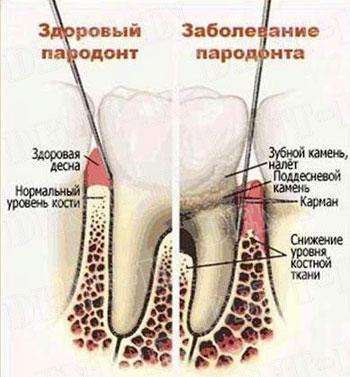 парадонтит фото симптомы и лечение
