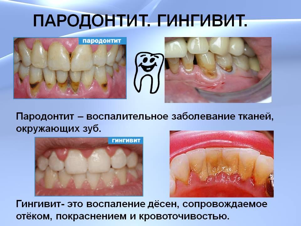 профилактика лечение вирусных инфекций