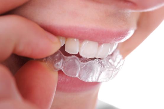 шинирование зубов цены