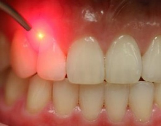 профессиональная чистка зубов стоимость