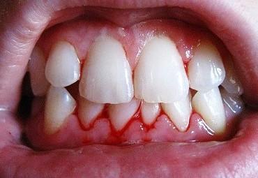 Если воспалились зубы что делать