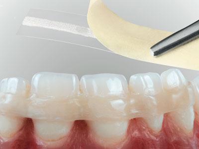 шинирование зубов при парадонтозе