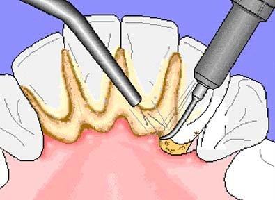профессиональная чистка зубов видео