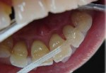 shinirovanie zubov_5