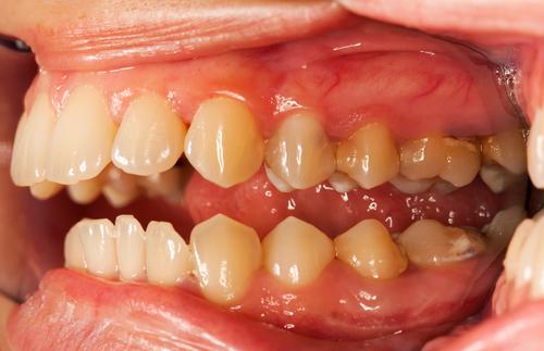 средство для удаления зубного камня