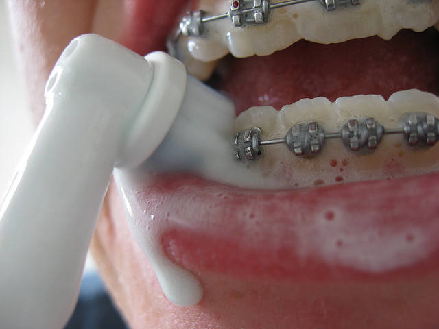 Чистка зубов от камня фото