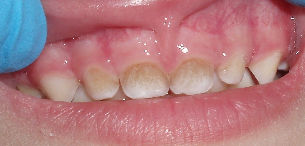 Фото зубного налета у детей